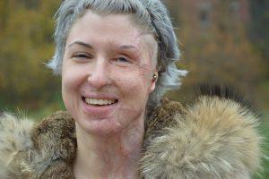 Für Vanessa Münstermann (27) stehen bald einige Operationen an. Gut, dass sie Spenden wie die der Ludwig- Windthorst dafür zur Verfügung hat. (Bild: © pkh)